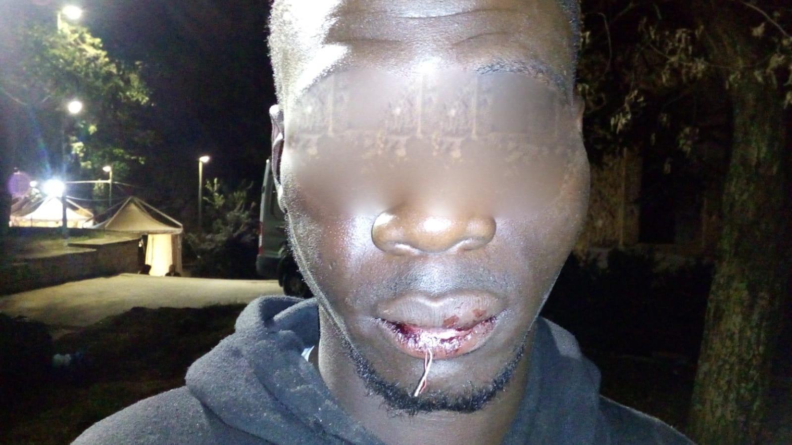 Picchiarono un gambiano a Piazza Armerina: scattano tre arresti