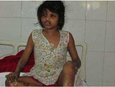 La polizia indiana trova la bimba allevata dalle scimmie