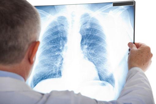 Fibrosi polmonare idiopatica, testato un farmaco al Gemelli