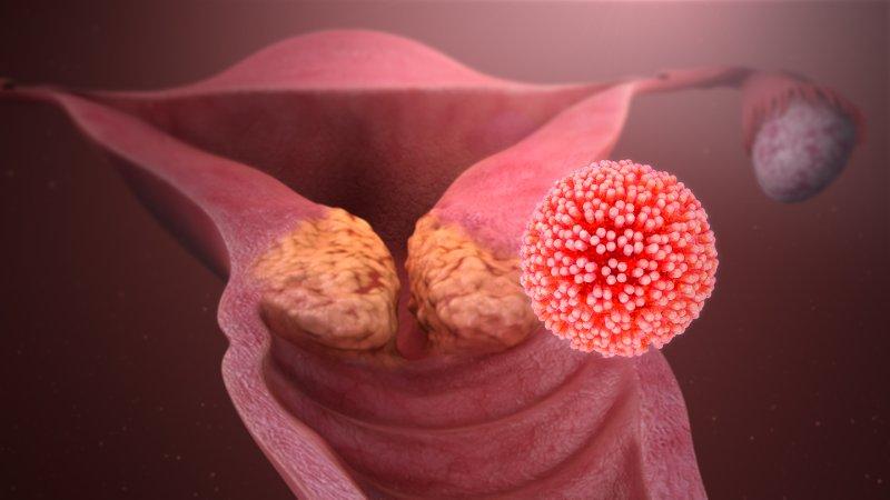 Papilloma virus, visite gratuite all'Humanitas di Catania