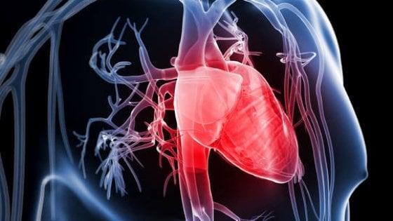 Cala la mortalità per infarto in Italia, ma non per ictus