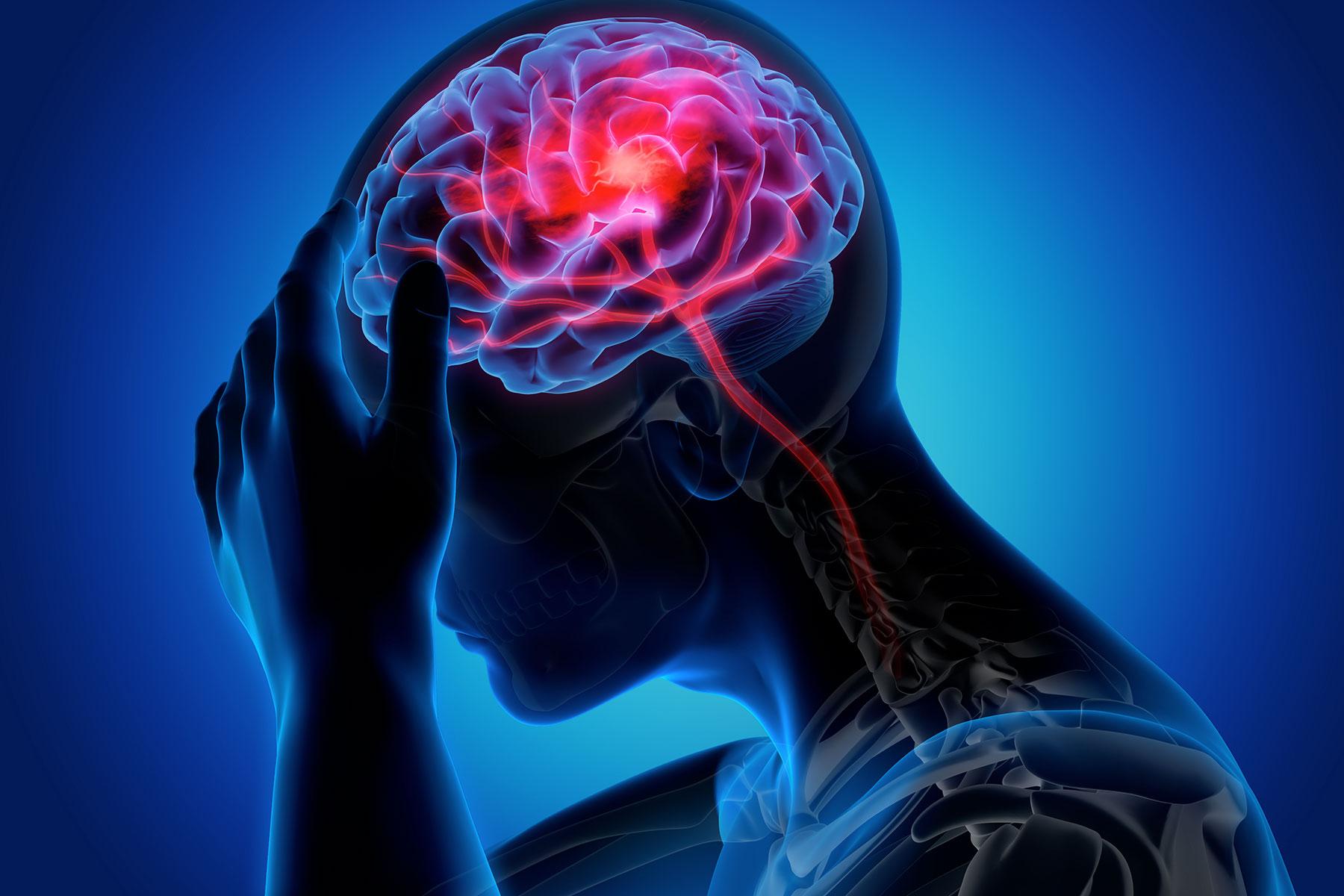 Congresso di neurologia dal 3 al 5 settembre a Caltanissetta