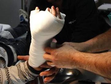 Capodanno, 4 bimbi di Palermo feriti dai botti: uno perde la mano