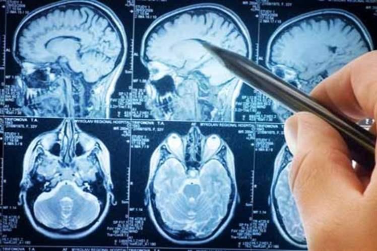 Istituito il registro regionale sulla Sclerosi multipla e l'Osservatorio sulla patologia