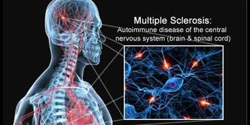Somministrato all'ospedale di Caltanissetta nuovo farmaco contro la sclerosi multipla