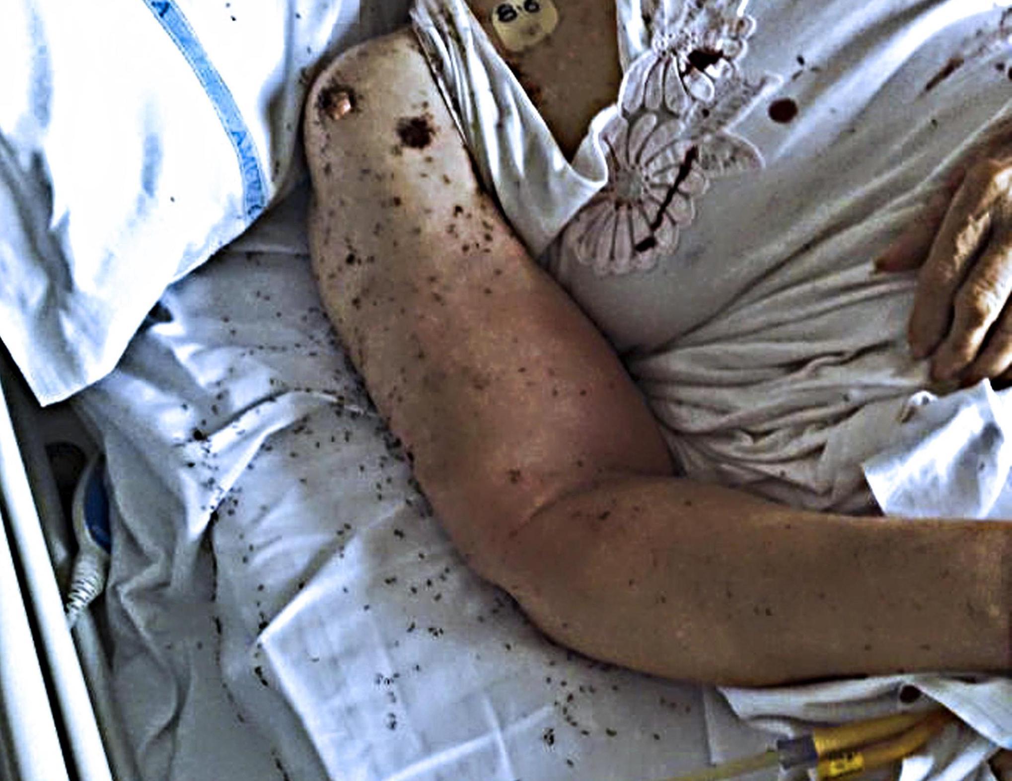 Sommersa dalle formiche mentre è ricoverata in ospedale a Napoli
