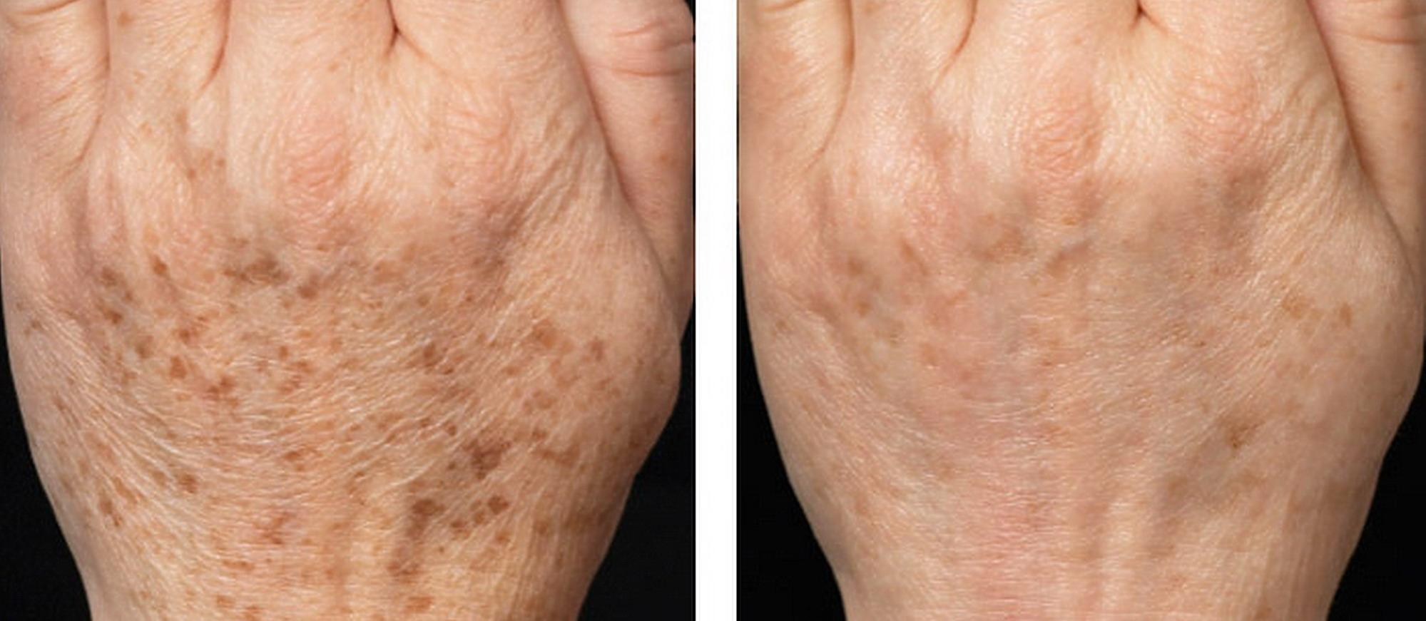 Iperpigmentazione cutanea: tutto quello che c'è da sapere