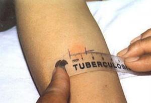 Siracusa, accertato un caso di tubercolosi al Centro anziani di Akradina