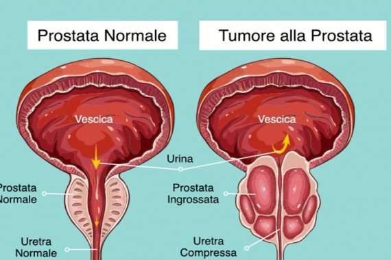 Tumori, diagnosi prostata: al Cannizzaro di Catania nuovo radiofarmaco