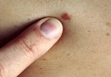 Tumori della pelle, prevenzione della Marina ad Augusta