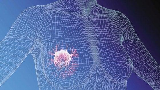 Nuovo sistema di monitoraggio dei tumori in una clinica di Palermo